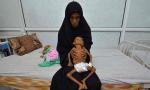 Yemens Starving December 2016